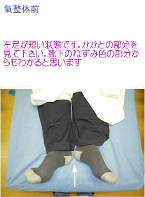 氣整体前…左足が短い状態です。両足は、ベッドの中心です