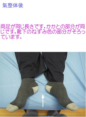 氣整体10秒後…両足の長さが揃いました。両足は、ベッドの中心です