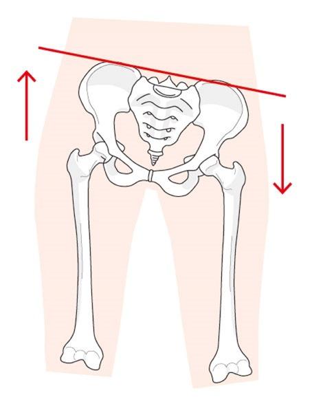 骨盤が異常の時の状態を表す図です。芝下(しばした)鍼灸整骨院