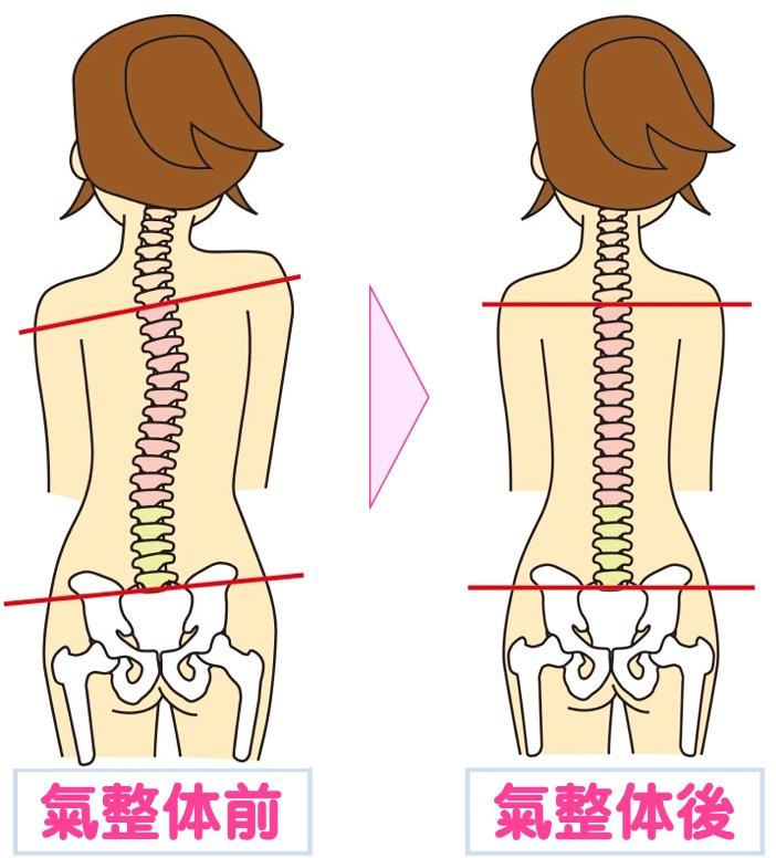 氣整体前と氣整体後の背骨の状態を表す図…芝下(しばした)鍼灸整骨院