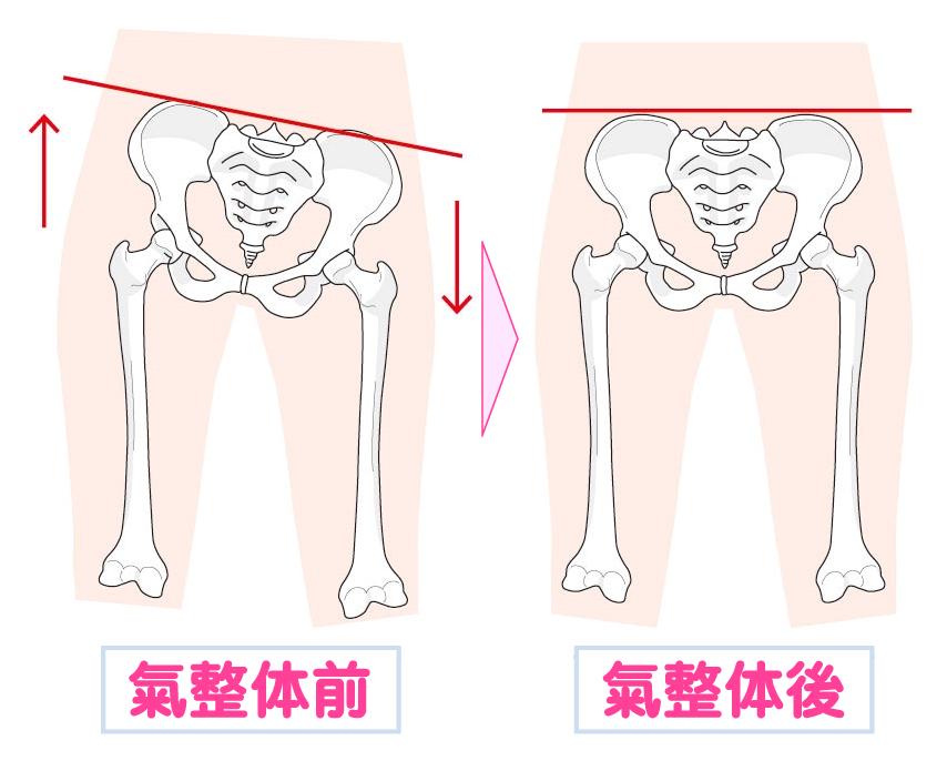 氣整体前と氣整体後の骨盤の様子の図です。芝下(しばした)鍼灸整骨院