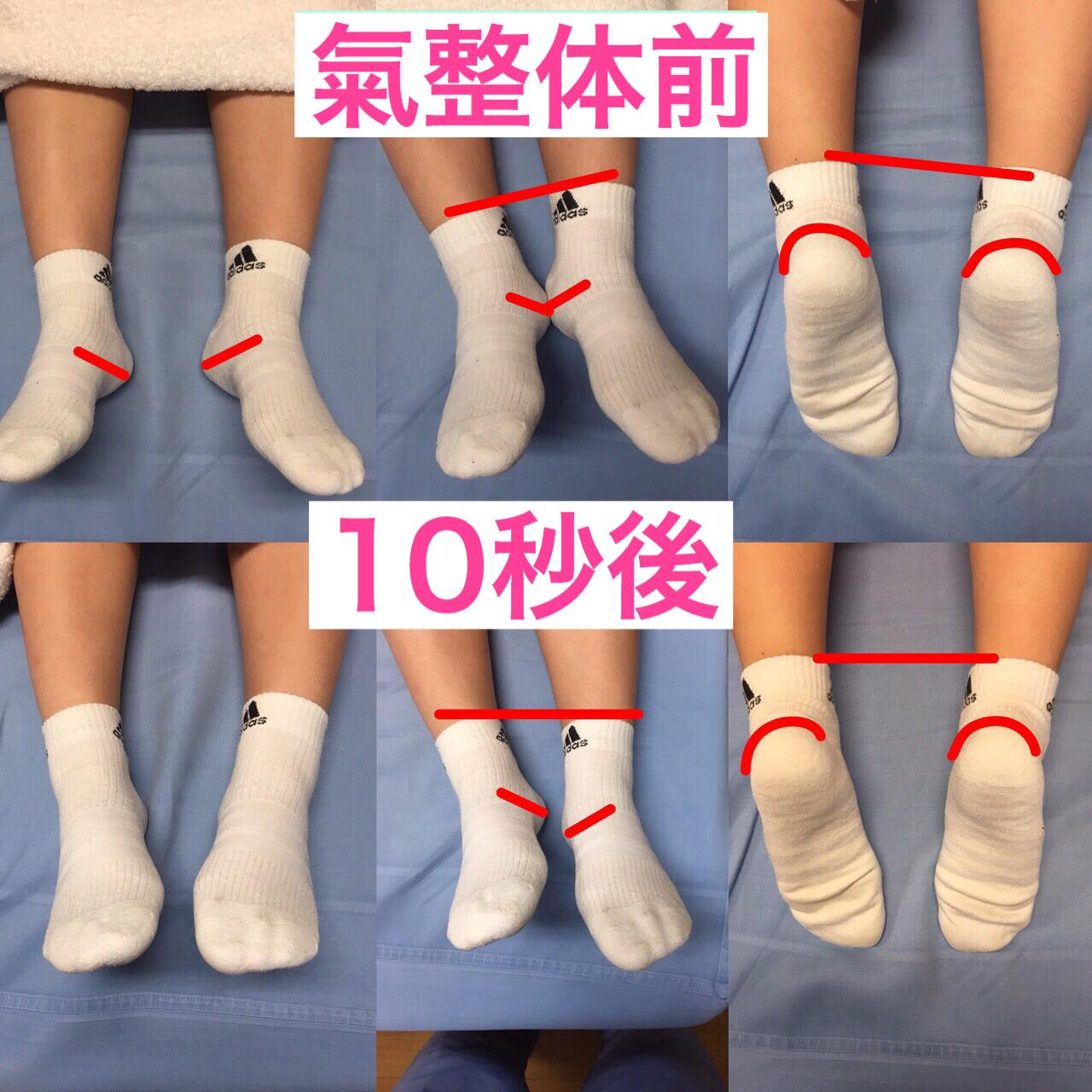氣整体前と氣整体10秒後の中学生の両足を見比べてます