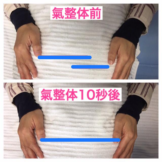 氣整体前と氣整体10秒後の骨盤の高さを実際触ってもらっております。芝下(しばした)鍼灸整骨院